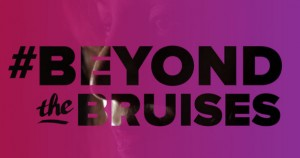 """The Society For Women's Health Research Announces """"Beyond The Bruises"""" Campaign Highlighting The Effects Of Domestic Violence On Chronic Disease"""